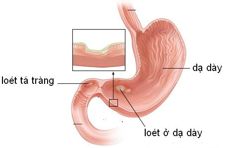 Bệnh viêm loét dạ dày tá tràng
